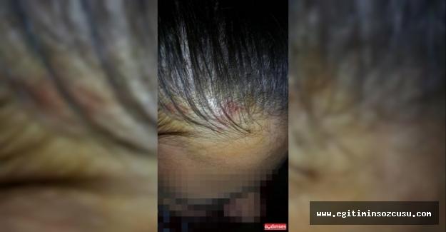 Okul müdürünün öğrenciye kapı kolu fırlattığı iddiası