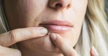 Akne'ye dikkat; Akne sorununa karşı 5 çözüm önerisi